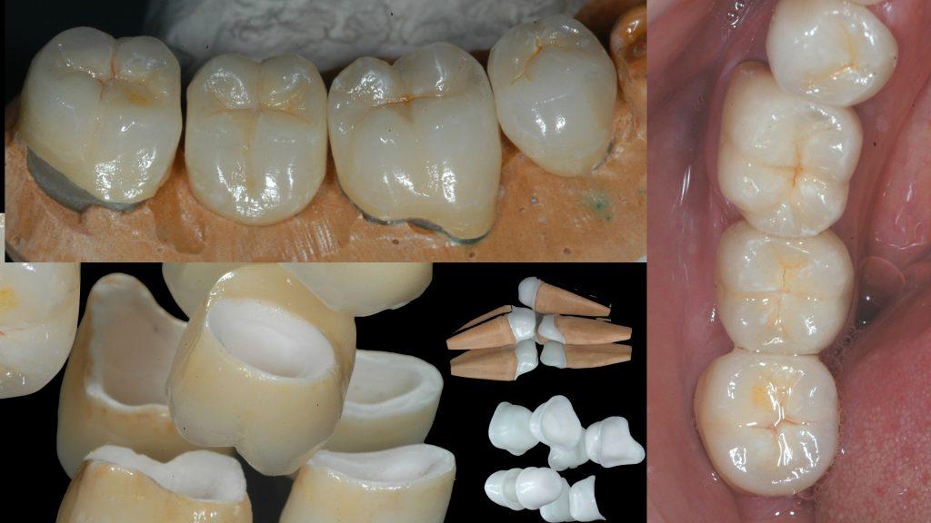 Prótese Fixa Sobre Dente