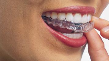 Clareamento Caseiro Reabilitacao Oral E Ortodontia