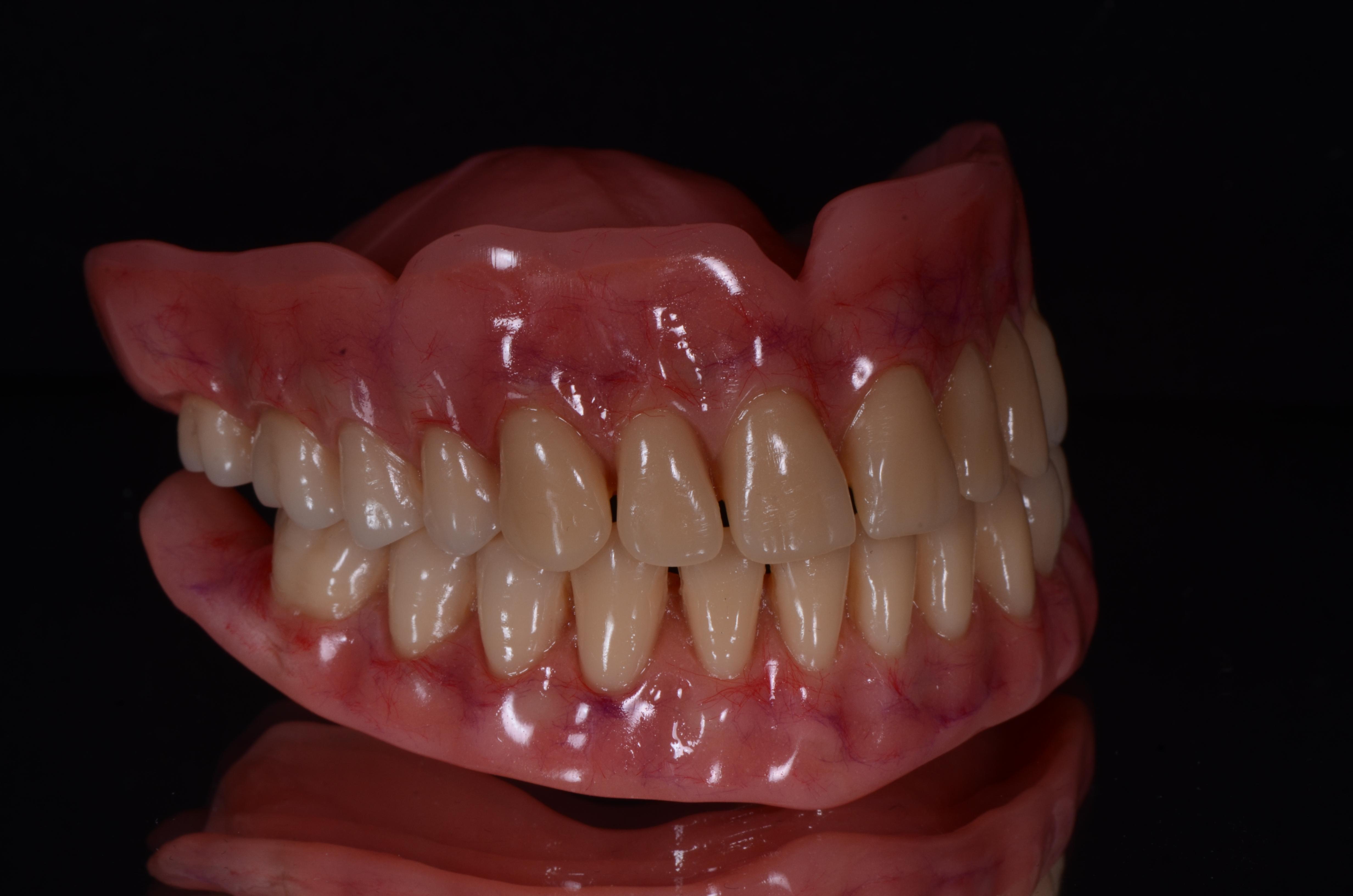Dentadura porto alegre