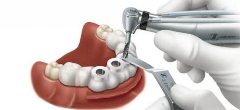2564ee17eef86 Nos implantes guiados por computador, as perfurações são feitas apenas com  a broca, garantindo um implante sem cortes, com muita exatidão, otimização  de ...