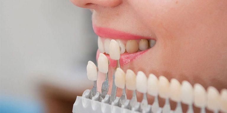 Como elas também alteram completamente a formato, tamanho, cor e também  posição dos dentes, muitos pacientes optam pelas porcelanas como solução  estética ... 8abe87a585