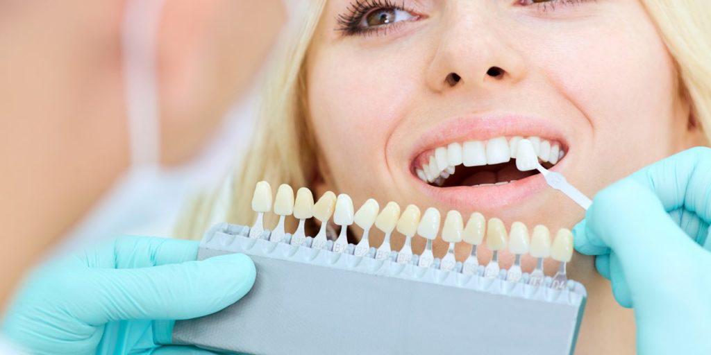 a681fb32a Tenha o sorriso dos sonhos com o procedimento das facetas de porcelana, que  poderá ser encontrado na Clínica Reabilitação Oral e Ortodondia em Porto  Alegre.